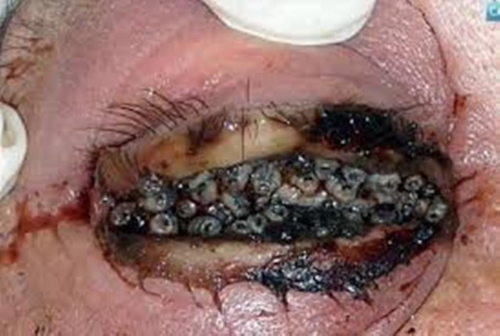 Disease Trypophobia Reference Website