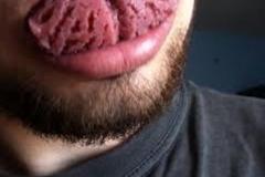 Trypophobic Tongue
