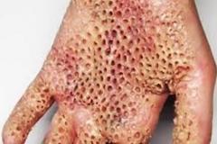 Trypophobic Hand