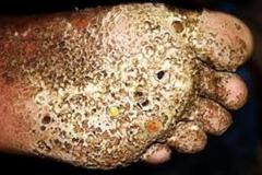 Diseased Trypophobic Foot
