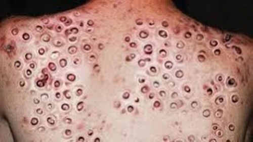 Clusters Of Holes Archives Trypophobia Reference Website