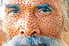 Trypophobic Old Man