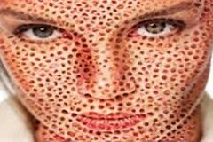 Trypophobic Face