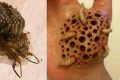 Trypophobia Worms