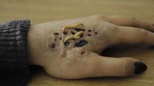 Trypophobic Parasites
