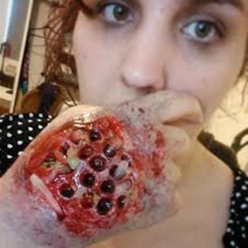 Bloody Trypophobic Hand